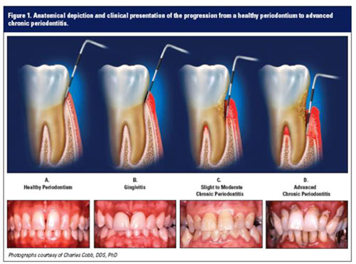 What is Periodontal Disease (Gum Disease) | Desert Ridge ...